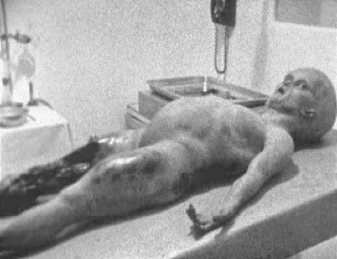 Still shot taken from the video footage of Alien Autopsy - 8 Greatest Hoaxes Of All Time