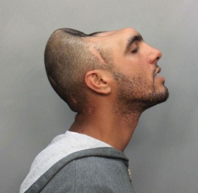 Man with half a head Carlos 'Halfy' Rodriguez - 10 real people you have to see to believe.
