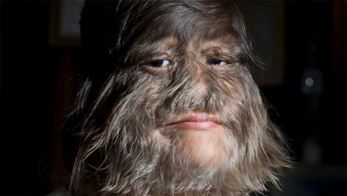 Supatra Nat Sasuphan world's hairiest woman - 10 real people you have to see to believe.