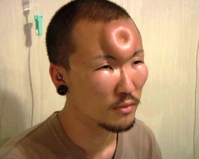 Bageling is a popular body modification in Japan - 10 Most Insane Body Modifications You Just Have To See