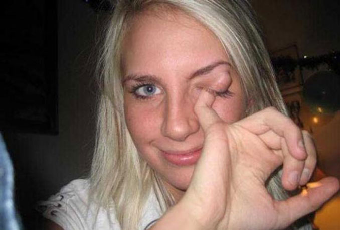 A girl sticking her finger in her eyelid - 20 WTF Photos You Just Have To See