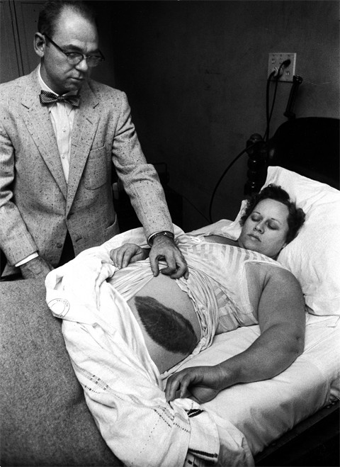 This real photo with a creepy backstory is of the first person to ever be injured by a meteorite.
