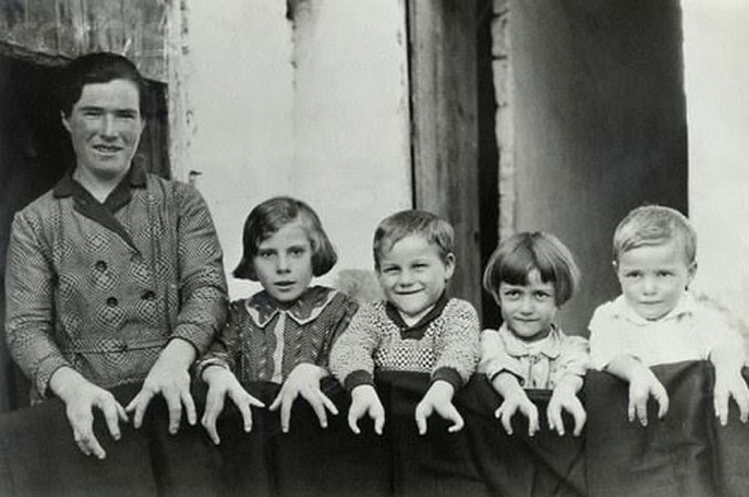 A photo of an unnamed Spanish mother and her children with ectrodactyly taken in the late 19th or early 20th century.