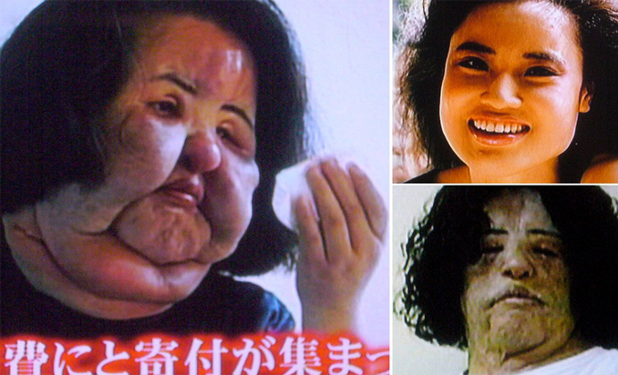 These are the craziest plastic surgeries ever performed.