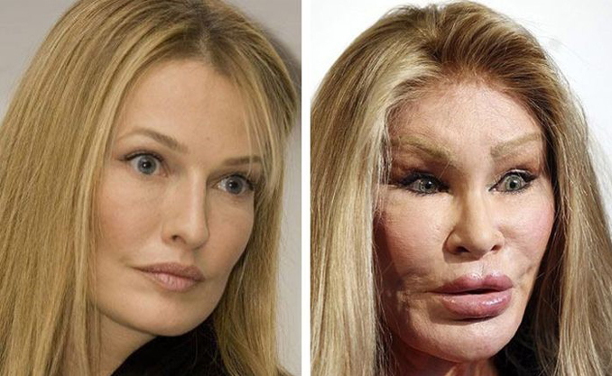 These are the craziest plastic surgeries